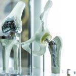 Wann sollten Biological Medikamente vor einer Gelenkersatzoperation gestoppt werden?