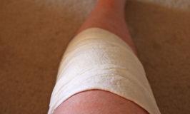 Wie hilfreich sind Kniebandagen bei Kniearthrose?